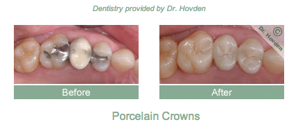 dental crown repair in Daly City and Pacifica