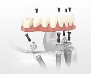 implant supported dentures and denture services in Daly City and South San Francisco
