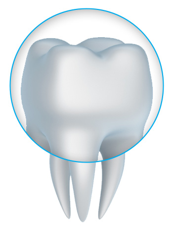 tooth crown and porcelain crowns with a South San Francisco dentist near Pacifica