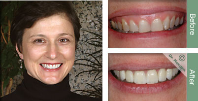 porcelain veneers and dental veneers with a San Francisco dentist in Daly City